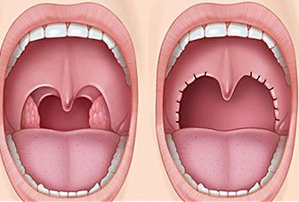 Resultado de imagem para uvulopalatoplastia